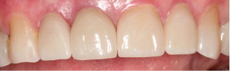 Lebanon_TN_Dentist_12.png