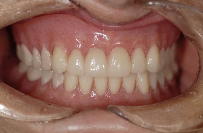 Denture_Patient_after.jpg