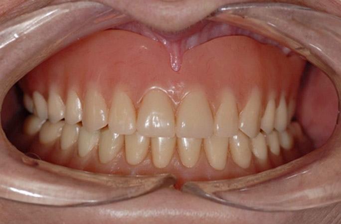 Denture_Patient_before.jpg