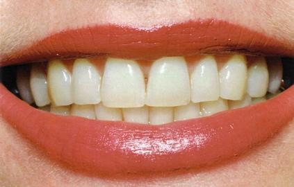 teeth_whitening_pic1.jpg