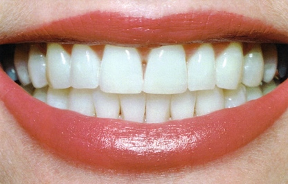 teeth_whitening_pic2.jpg