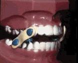dentaldevice.jpg