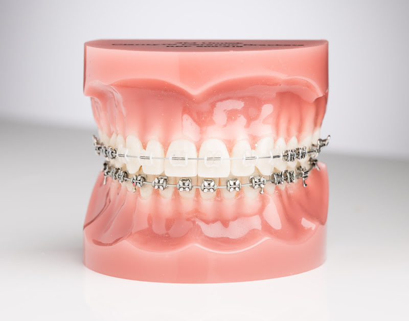 traditional-ceramic-braces-1.jpg