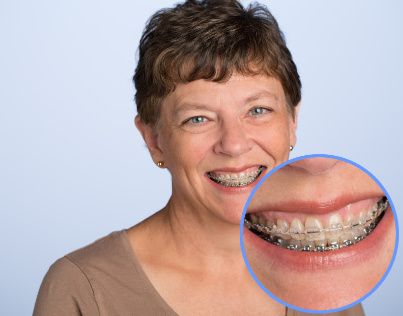 traditional-ceramic-braces-3.jpg