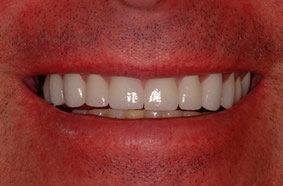Dental_Crown_after.jpg