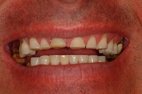 Dental_Crown_before_and_after.jpg