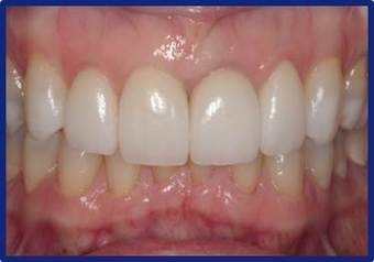 Dental_implants_after_2.jpg