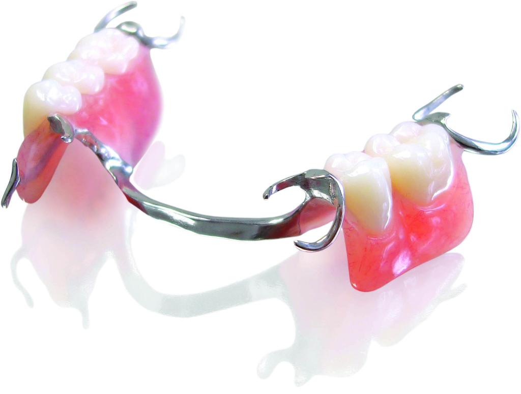 Partial-Dentures-1024x775.jpg