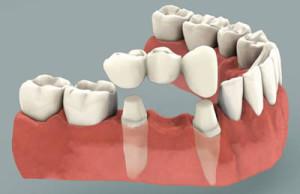 dental_bridge-300x194.jpg