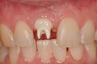 missing-tooth-restored-with-an-implant-crown.jpg