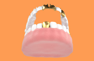 Dental-Crowns-300x195.jpg