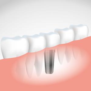 Implant-01-300x300.jpg