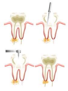 root-canal-226x300.jpg